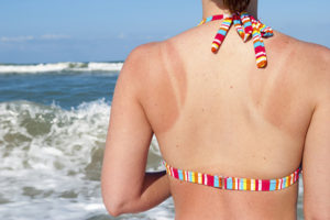 Sunburned woman at beach