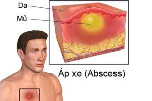 Bệnh áp xe (absès)