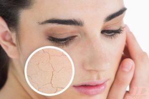 Những cách chữa da khô nứt nẻ vào mùa đông