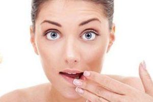 2 phương pháp chữa nhiệt miệng cho hiệu quả nhanh nhất