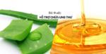 Nha Đam (Lô Hội) – Cây Thuốc Tuyệt Diệu Chữa Nhiều Bệnh Ung Thư