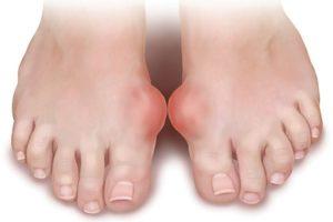 Đến nay, bệnh Gout vẫn chưa có thuốc điều trị. Liệu cây lược vàng có làm nên kỳ tích?