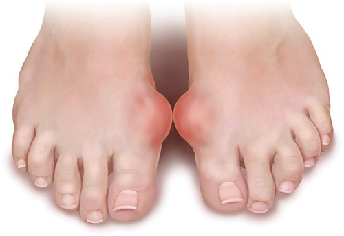 Cây lược vàng chữa bệnh Gout