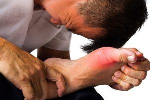 Mục tiêu trong điều trị bệnh gout chính là giúp bệnh nhân giảm bớt đau đớn