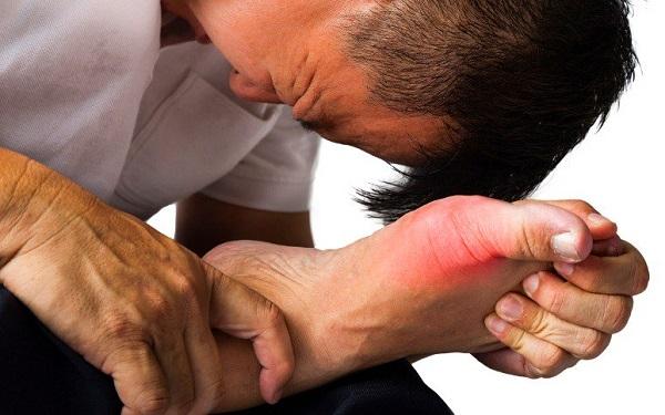 Cây mật nhân chữa bệnh Gout