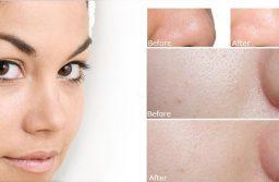 Bí quyết làm đẹp da mặt bằng nước vo gạo và những lưu ý cần biết