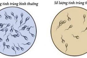Cách chữa bệnh tinh trùng ít và yếu hiệu quả bằng cây thuốc dễ tìm