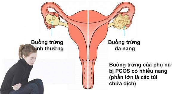 Phát hiện cách chữa buồng trứng đa nang giúp bạn nhanh chóng có con