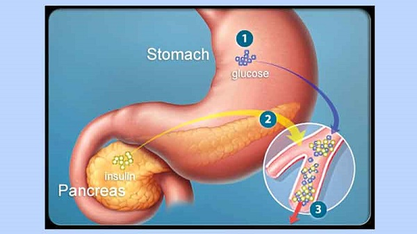 Tinh bột nghệ hỗ trợ chữa bệnh dạ dày