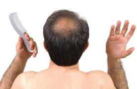 """Tại sao tình trạng rụng tóc nhiều xảy ra ở """"Nam giới"""""""