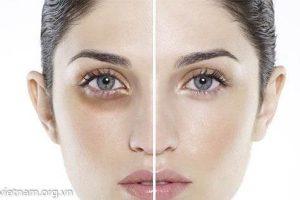 Nguyên nhân gây ra thâm quầng mắt