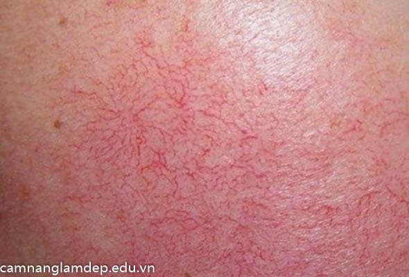 Tác dụng của corticoid bôi da