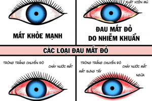 Những bệnh thường gặp về mắt bạn cần biết